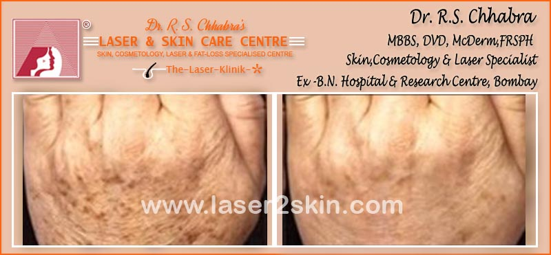 Blemishes Pigmentation With Facial Peeling by Dr R.S. Chhbara