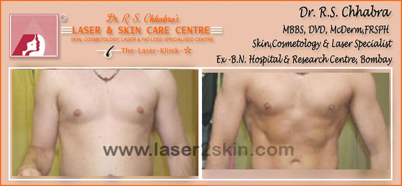 Fat Loss With Fat Loss Laser Therapy by Dr R.S. Chhbara