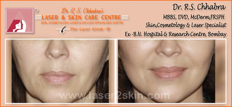 Facial Rejuvenation Instant Glow With Photofacial by Dr R.S. Chhbara