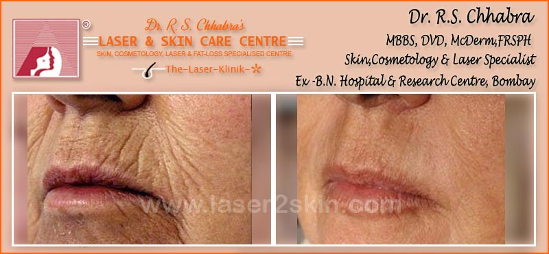 Wrinkles treatment by Dr R.S. Chhbara with IPL & E-Light laser